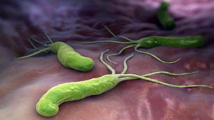 Helicobacter pylori, antecedentes familiares y dieta, principales causas del cáncer de estómago