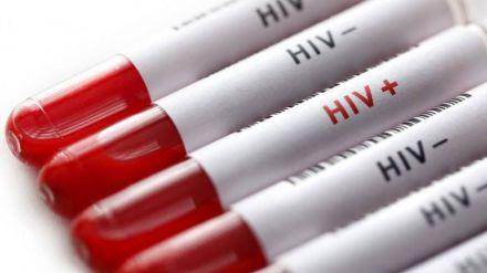 La prueba para el autodiagnóstico del VIH ya está disponible en las farmacias sin necesidad de prescripción médica