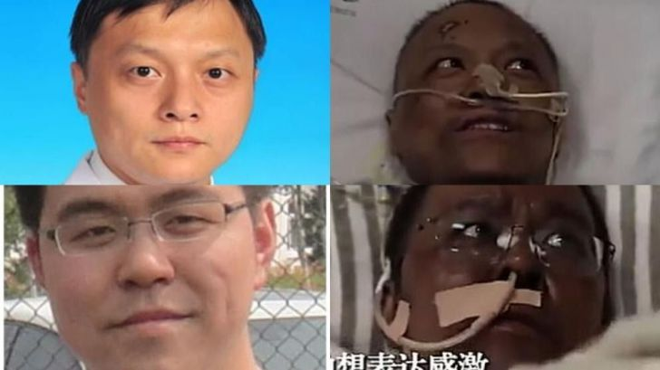Dos médicos chinos cambian su color de piel tras padecer coronavirus
