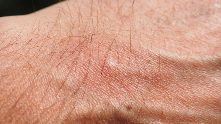 ¿Cómo prevenir las picaduras de los mosquitos?