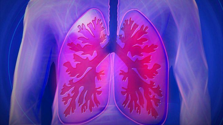 La evidencia científica apoya el cribado del cáncer de pulmón
